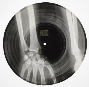 [Musique] Les vinyles sur radiographies en Russie